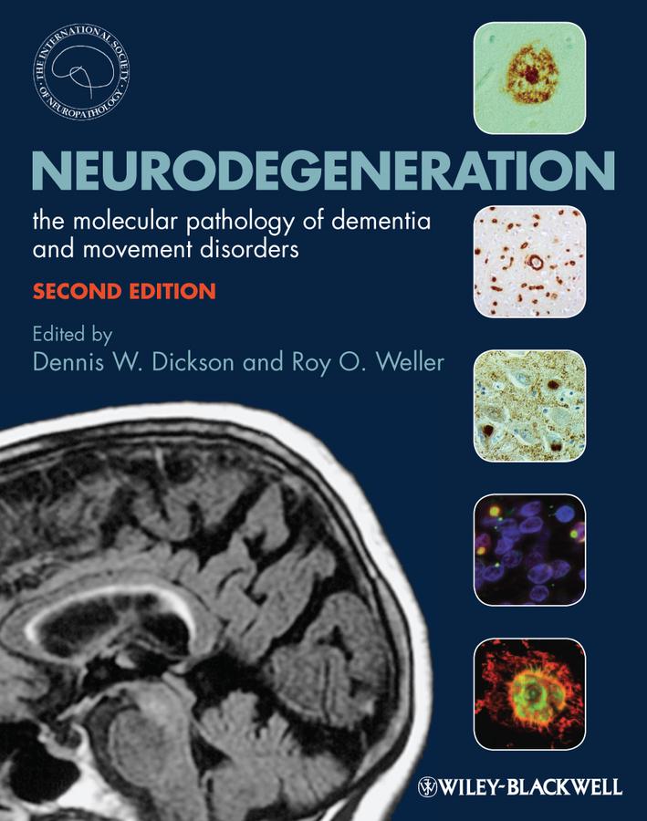 Neurodegeneration. The Molecular Pathology of Dementia and Movement Disorders