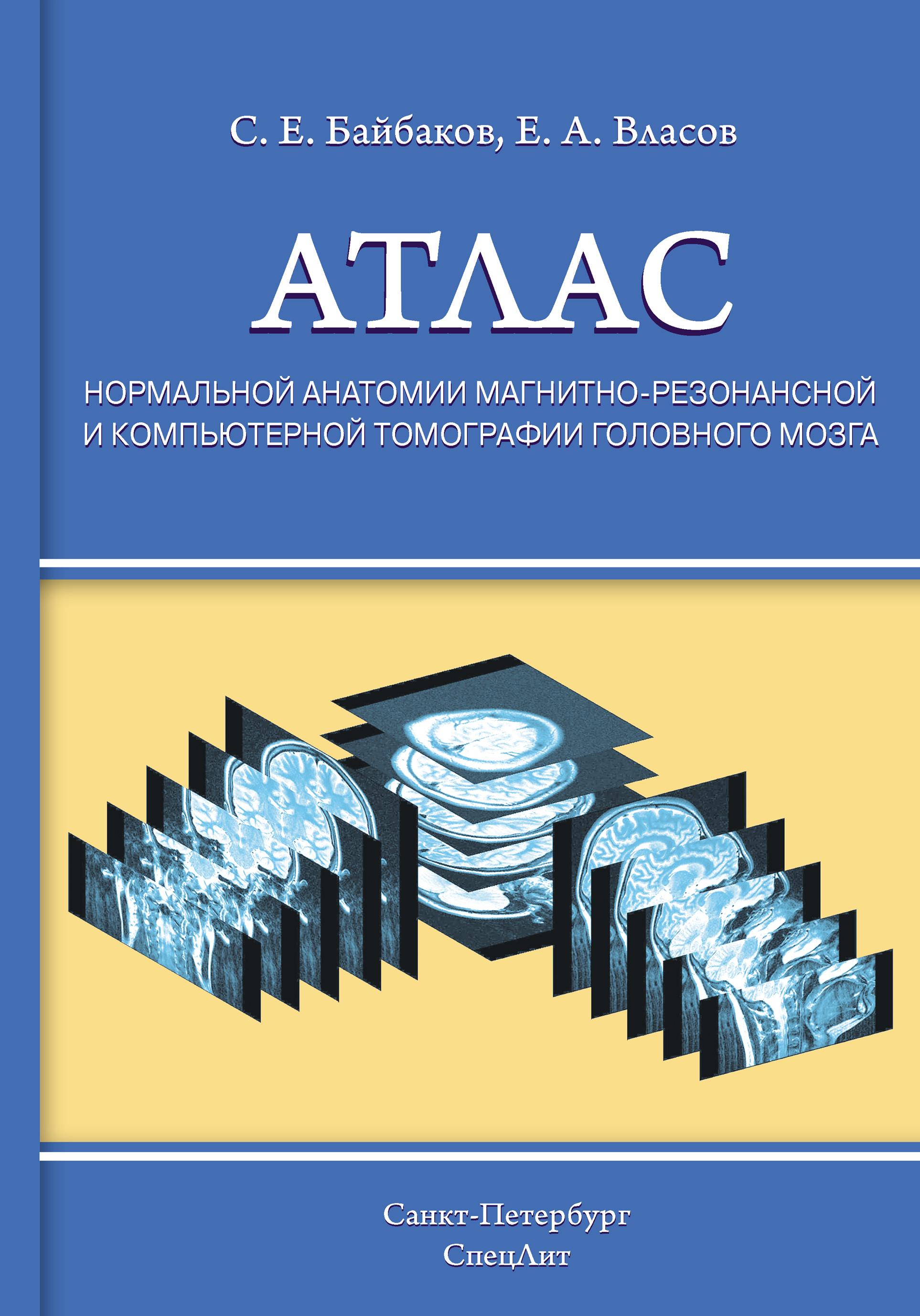 Евгений Власов Атлас нормальной анатомии магнитно-резонансной и компьютерной томографии головного мозга