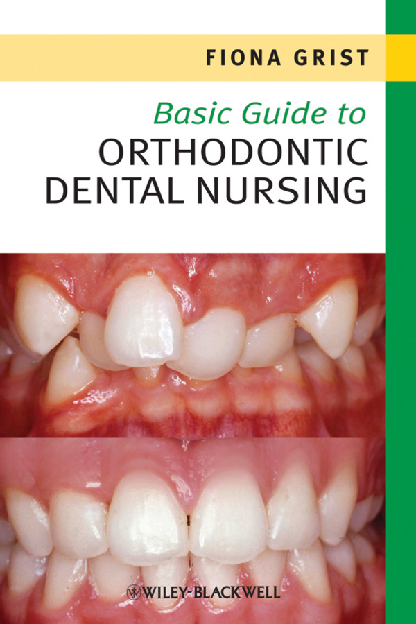Fiona Grist Basic Guide to Orthodontic Dental Nursing