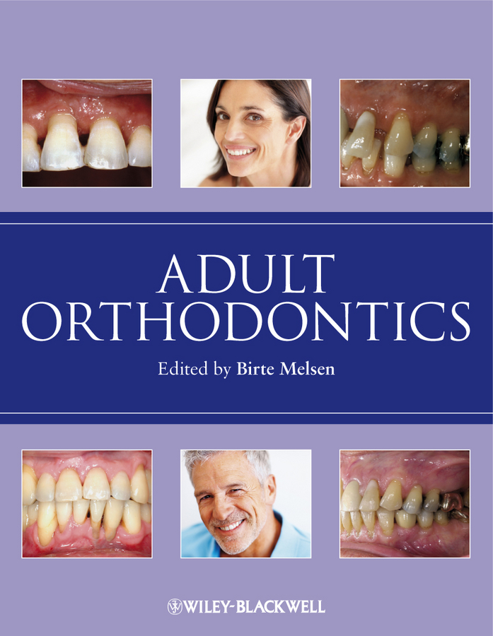 Birte Melsen Adult Orthodontics цены