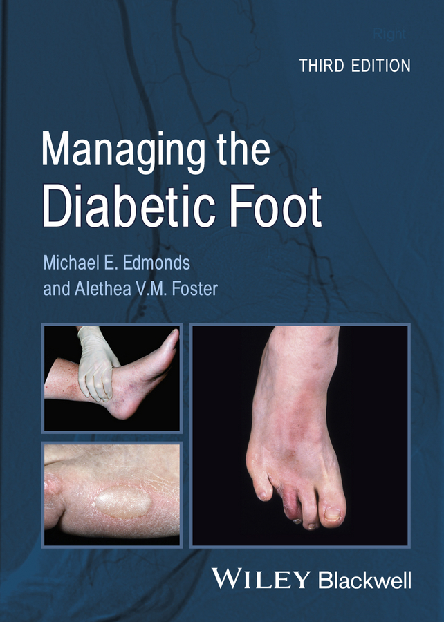 Foster Alethea V.M. Managing the Diabetic Foot human foot bone model foot sole joints of foot ankle tibia and fibula foot model department of orthopedics teaching for medical