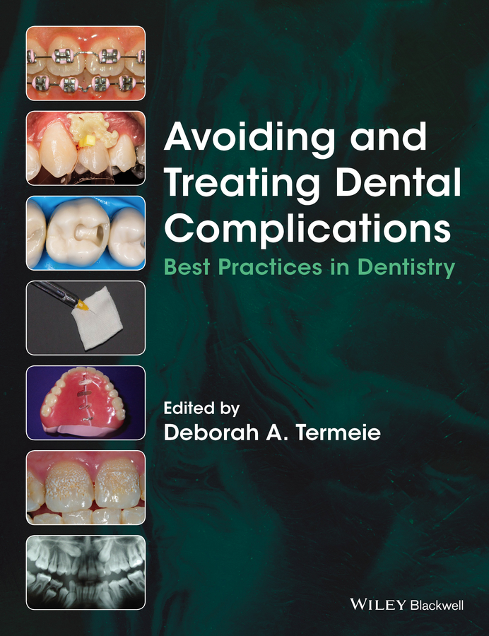 Deborah Termeie A. Avoiding and Treating Dental Complications. Best Practices in Dentistry articulators in dentistry