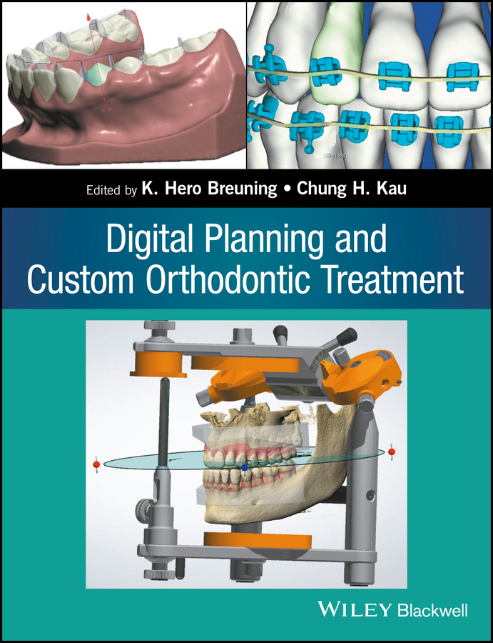 лучшая цена Chung Kau H. Digital Planning and Custom Orthodontic Treatment