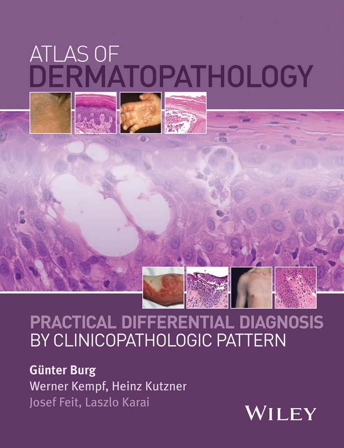 Werner Kempf Atlas of Dermatopathology. Practical Differential Diagnosis by Clinicopathologic Pattern the final diagnosis