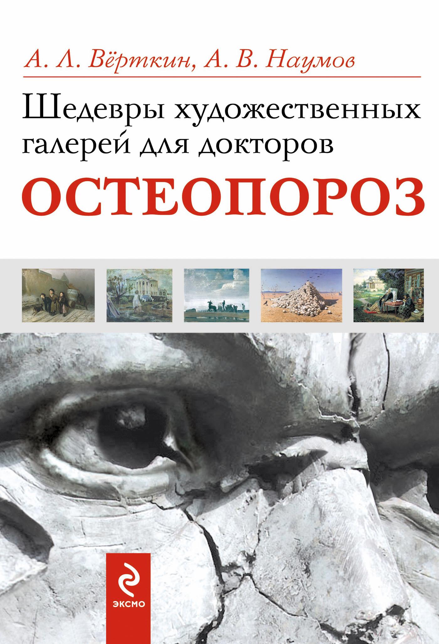 Фото - Аркадий Верткин Шедевры художественных галерей для докторов. Остеопороз а л вёрткин шедевры художественных галерей для докторов остеопороз