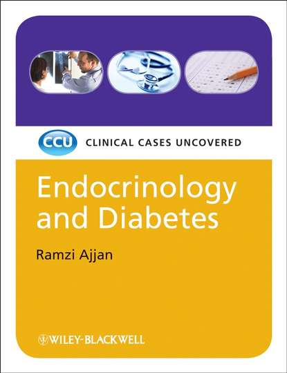 Ramzi Ajjan Endocrinology and Diabetes, eTextbook. Clinical Cases Uncovered недорого