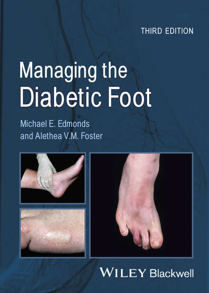 Фото - Foster Alethea V.M. Managing the Diabetic Foot lee sanders a practical manual of diabetic foot care