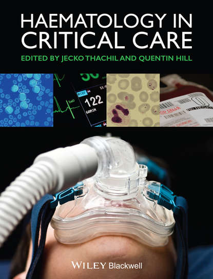 Thachil Jecko Haematology in Critical Care. A Practical Handbook