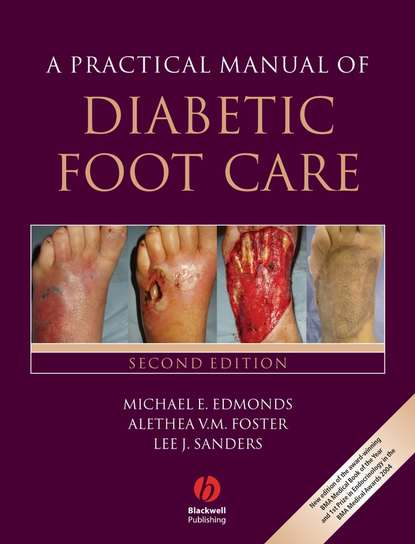 Фото - Lee Sanders A Practical Manual of Diabetic Foot Care lee sanders a practical manual of diabetic foot care