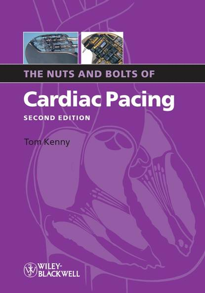 Фото - Группа авторов The Nuts and Bolts of Cardiac Pacing tom kenny the nuts and bolts of cardiac pacing